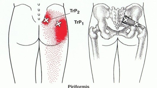 Do you experience Hip discomfort?